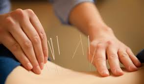 Gallery Image acupuncture.jpg