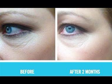 Rodan Fields Kelly Rowell Independent Consultant Skin Care