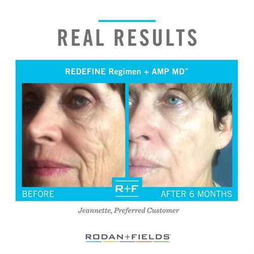 REDEFINE is the #1 selling and fastest growing anti-aging skincare line in North America!