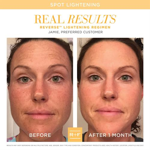 REVERSE Lightening Regimen for stubborn dark spots