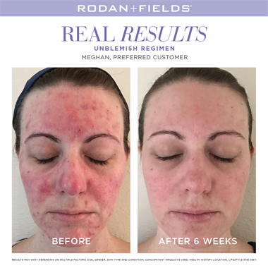 Break the breakout cycle with UNBLEMISH, the #1 premium acne brand in the U.S. for adult acne with anti-aging benefits too!