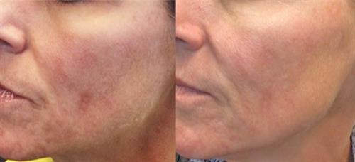 Before & after 1 Vibrance Peel