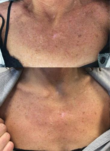 Before & after 2 Glycolic Peels