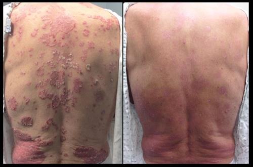 Before & after 3 months of phototherapy for Psoriasis