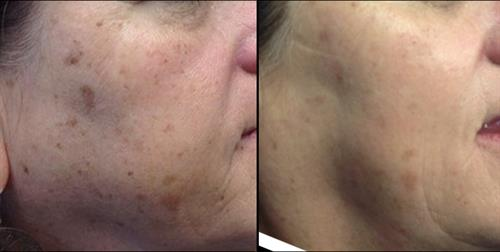 Before & after Alexandrite Laser Spot Treatment