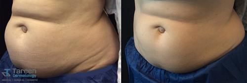 Before & after Coolsculpting treatment