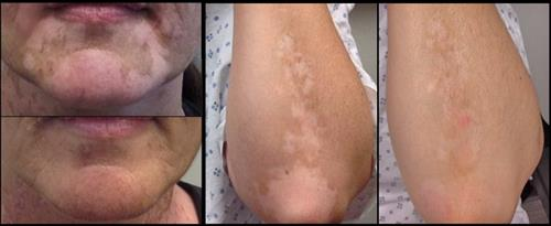 Before & after Eximer laser for Vitiligo
