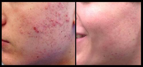 Before & after acne treatment