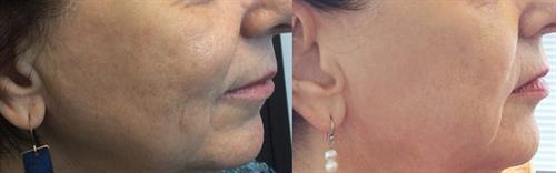 Before & after 1 Microneedling treatment