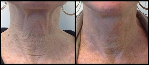 Before & after laser skin tightening treatment