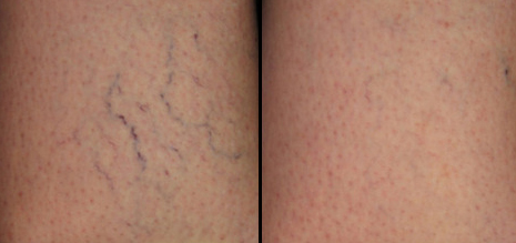 Before & after sclerotherapy for leg veins