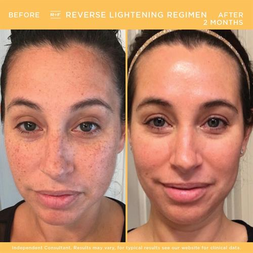 Our REVERSE regimen is specifically formulated to address the signs of sun damage - dullness, dark spots, & discoloration.