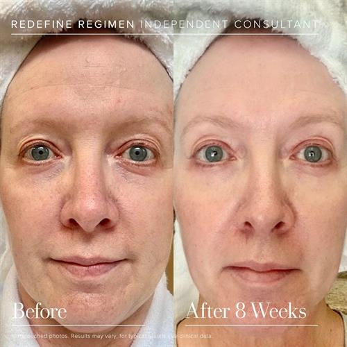 Our REDEFINE regimen is the #1 anti-aging regimen in the U.S. It corrects and prevents fine lines, wrinkles, sagging, large pores, and loss of firmness.