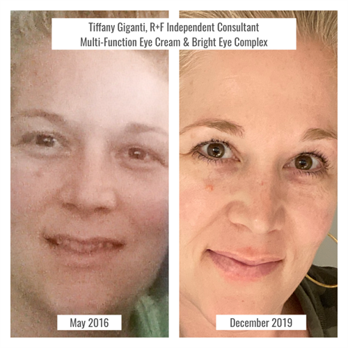 Incredible results using Multi-Function Eye Cream (for anti-aging), and Bright Eye Complex (for dark undereye circles and puffiness)
