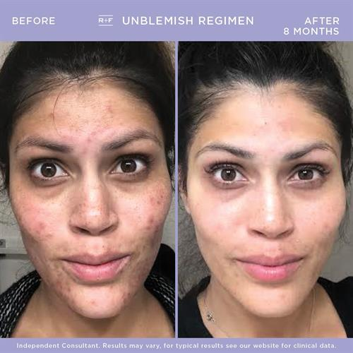 Our UNBLEMISH regimen is specifically designed to address adult acne. Tackles acne and provides anti-aging benefits!