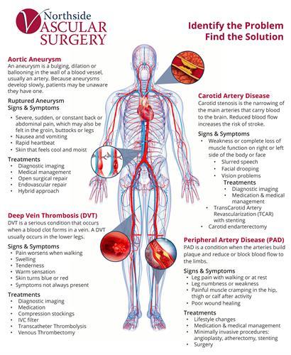 Gallery Image NVS_Vascular_Disease_Diagram.jpg