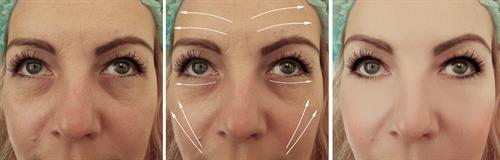 B&A facial rejuvenation with Botox, fillers to the mid-cheek area, and combination laser therapy