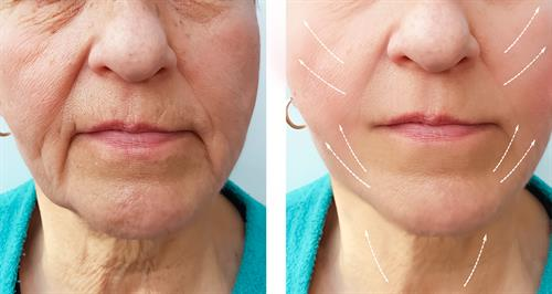 B&A mid, lower face, and neck augmentation with filler combination laser therapy for optimal effect