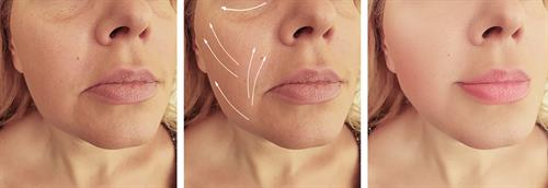 B&A mid and lower face filler augmentation with combination laser therapy