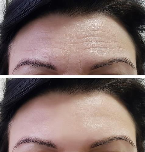 Botox B&A forehead wrinkles