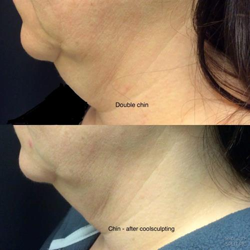 Gallery Image before_and_after_coolsculpting_treatment_on_chin.jpg