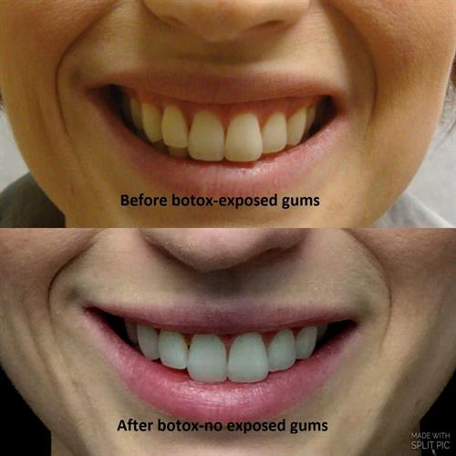 Gallery Image before_and_after_treating_exposed_gums_with_botox.jpg