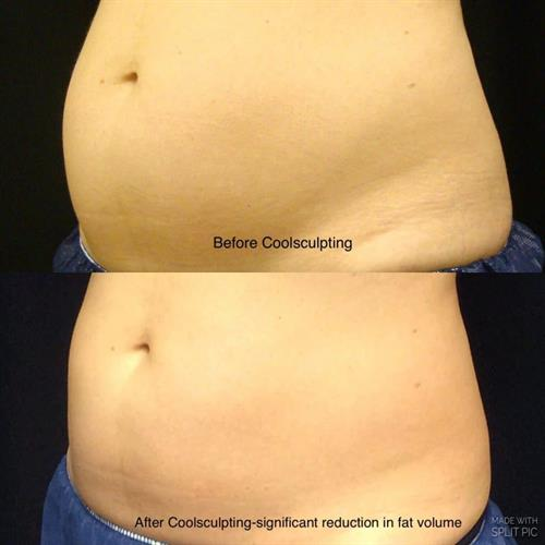 Gallery Image before_and_after_tummy_coolsculpting_treatment.jpg