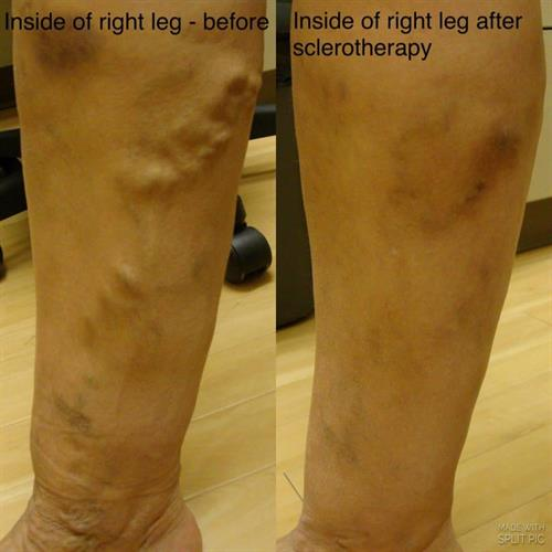 Gallery Image leg_treatment_for_sclerotherapy_at_VIVAA.jpg