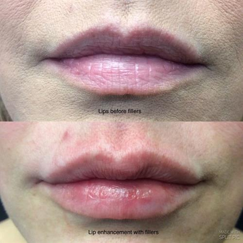 Gallery Image lip_filler_treatment_at_VIVAA.jpg