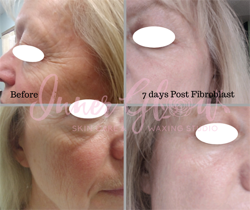 Before and After Fibroblast Skin Tightening