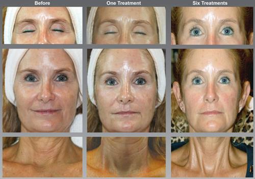 Circadia SWiCH Dermal Rejuvenation