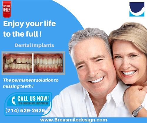 DENTAL IMPLANTS BREA CA