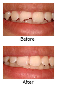 Gallery Image cosmetic-bond-fix-teeth-covina.jpg