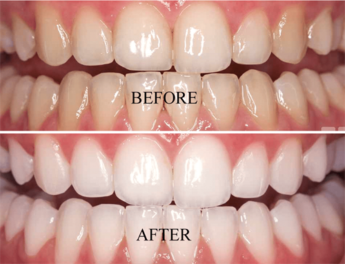 Gallery Image teeth_whitening_before_and_after_opalescense-1.png