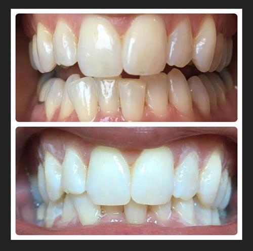 Dental Hygiene On Demand offers in-office whitening and take-home whitening.