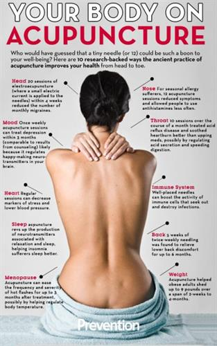 Acupuncture - What it's good for....