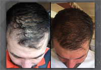 Hair Replacement - NeoGraft procedure
