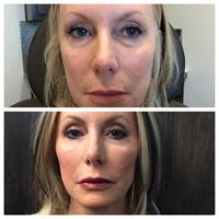 Fillers - before and after