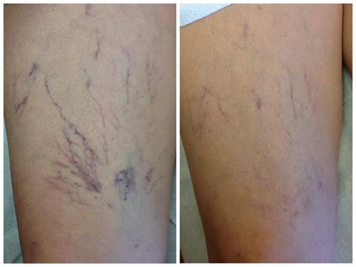 Laser spider vein removal
