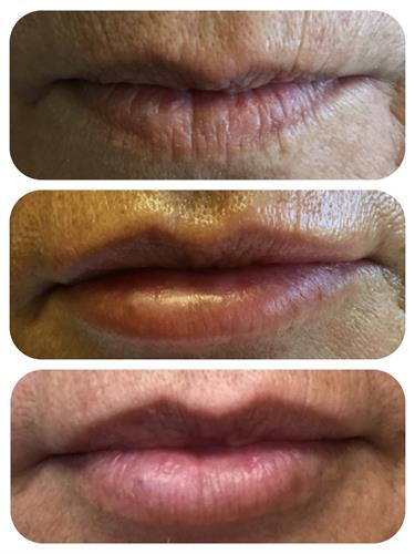 Lip augmentation with Juvederm Volbella XC