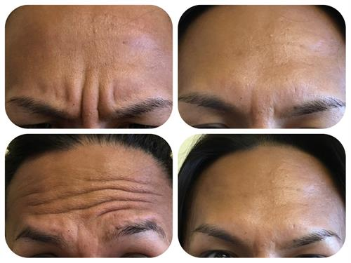 Botox before and after for frown lines and forehead lines