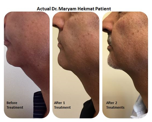 Kybella injection for double chin fat removal