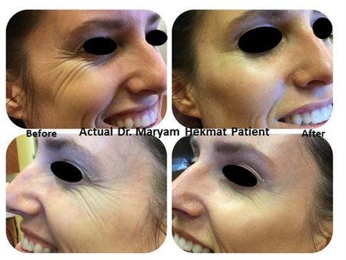 Botox to crews feet lines and Juvederm Voluma XC to cheek area