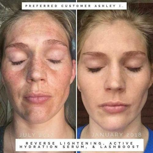 Reverse Regimen Before and After