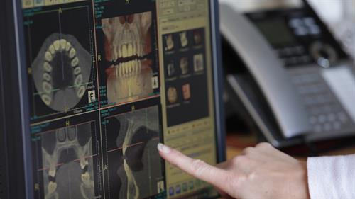 We have a CT machine which takes a 3-D image of your jaw.