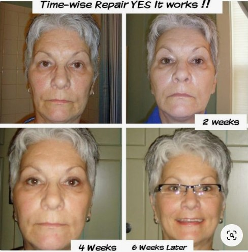 Using our Repair Volu-firm Skin care.  Look at results from 6 weeks!