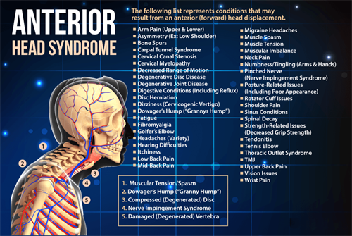 Gallery Image anterior-head-syndrome-1024x687.png
