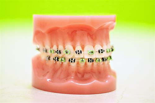 Braces and Invisalign Expert for children and adults
