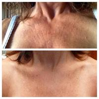 Before/after chest