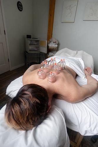Gallery Image Cupping_Massage_2_.jpg